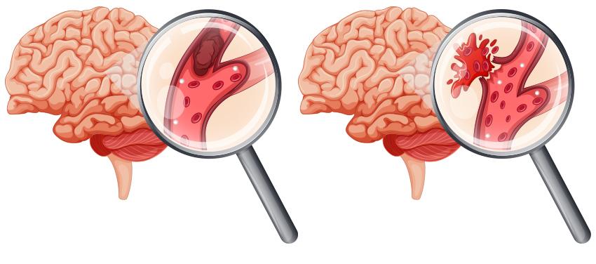 Предвестник инсульта симптомы