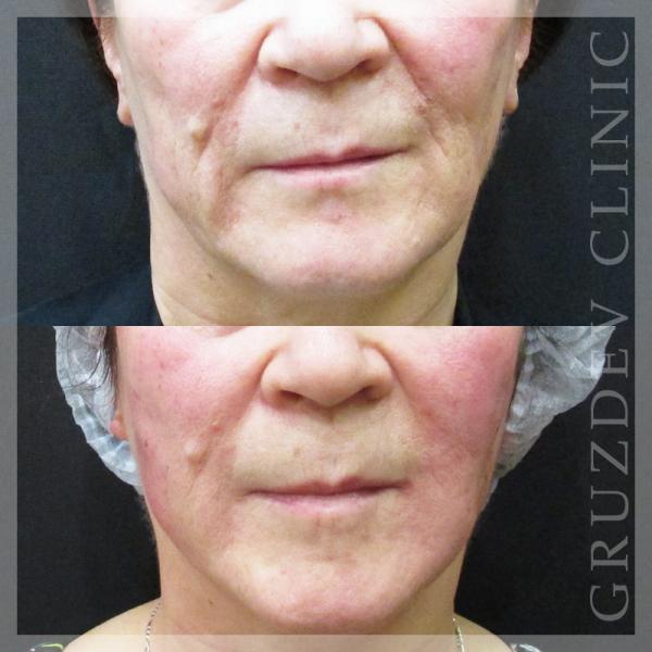 Какие существуют виды гиалуроновой кислоты для инъекций в кожу