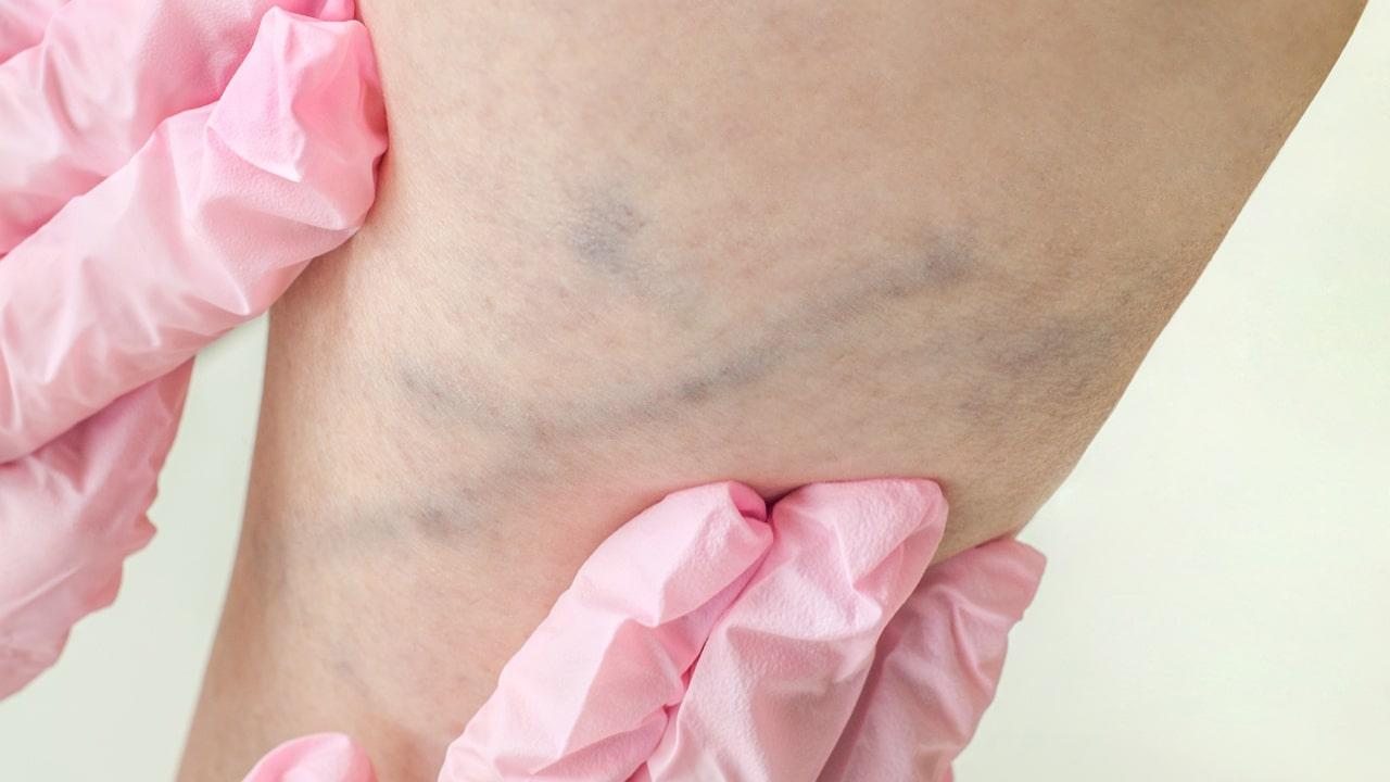 Как выглядит варикоз ног