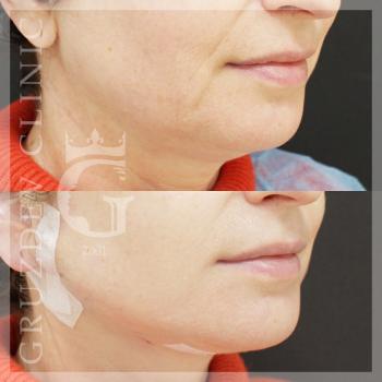 soft-tissue-facial-lift-erotic-oral-photos